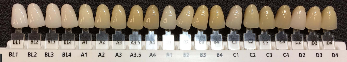 A scale showing the colour options for Hollywood smile veneers