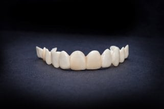 A front-facing Hollywood smile veneers against a dark background