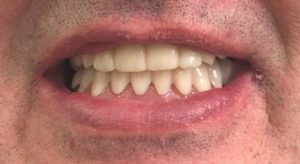 clip on veneers