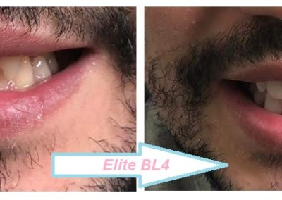 elite bl4