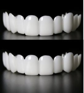 clip in veneers