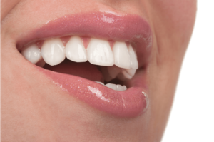 affordable veneers
