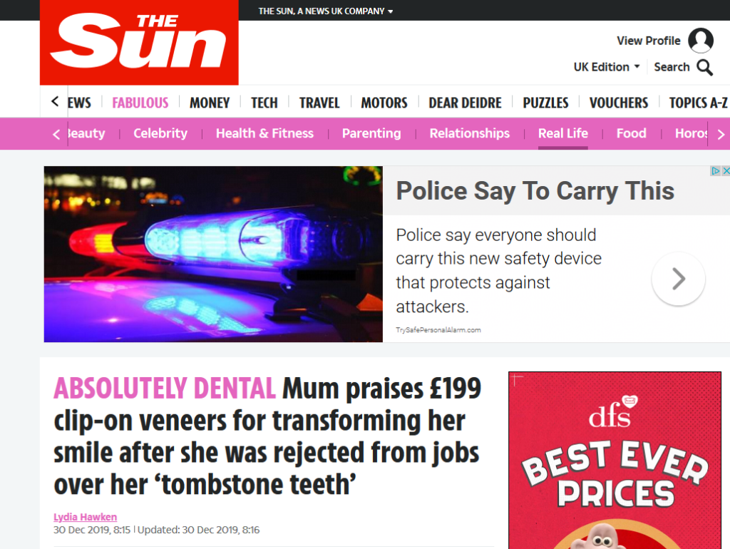 Fab Smile Veneers as Featured in The Sun