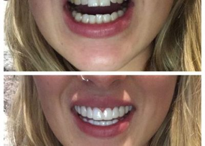 teeth veneers before & after
