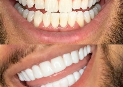 smile before & after