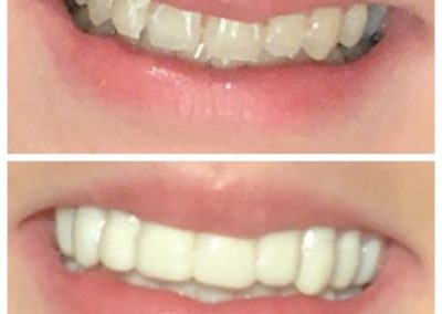 before & after teeth