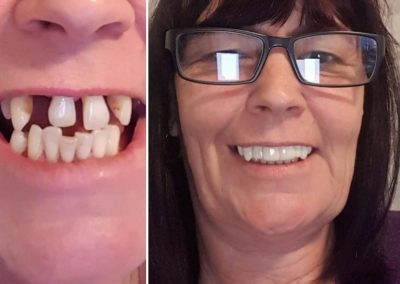 teeth veneers comparison