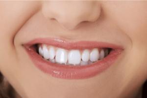 Teeth veneers UK