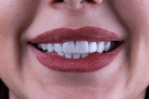 teeth veneers uk
