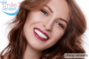 cheap veneers for teeth