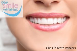 Clip on teeth veneers