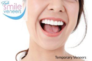 temporary veneers